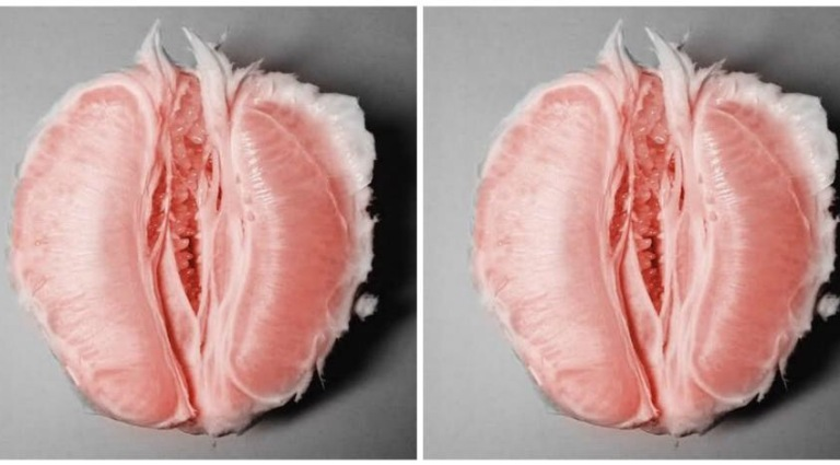 поврежденные гениталии фото закон тех